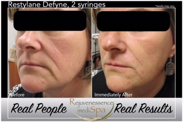 Restylane® Family of Products   Rejuvenessence mediSpa
